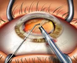 eye Treatement lens implant surgeries ilasik surgery intra lasik lasik prk